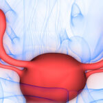 Uterine Causes of Recurrent Pregnancy Loss