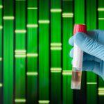 Why Genetic Testing